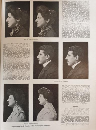 Vorher-/Nachher-Vergleich bei Nasenkorrekturen vor 120 Jahren – Xecutives.net berichtet aus einem Artikel in der Illustrierte Zeitung vom 6.Juli 1905
